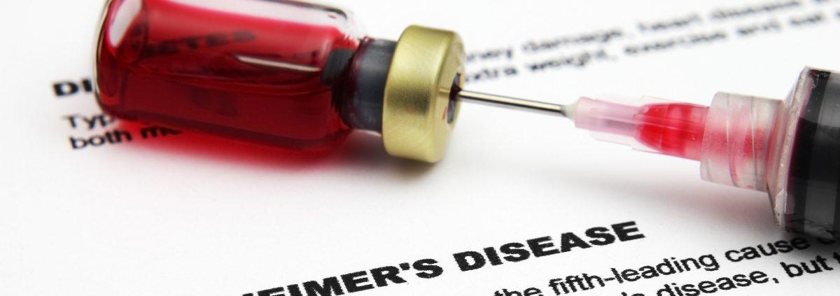 ricerca Alzheimer